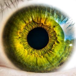 Newsletter March – Intraoperative Floppy Iris Syndrome